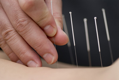 Acupuncture is Effective for Pain